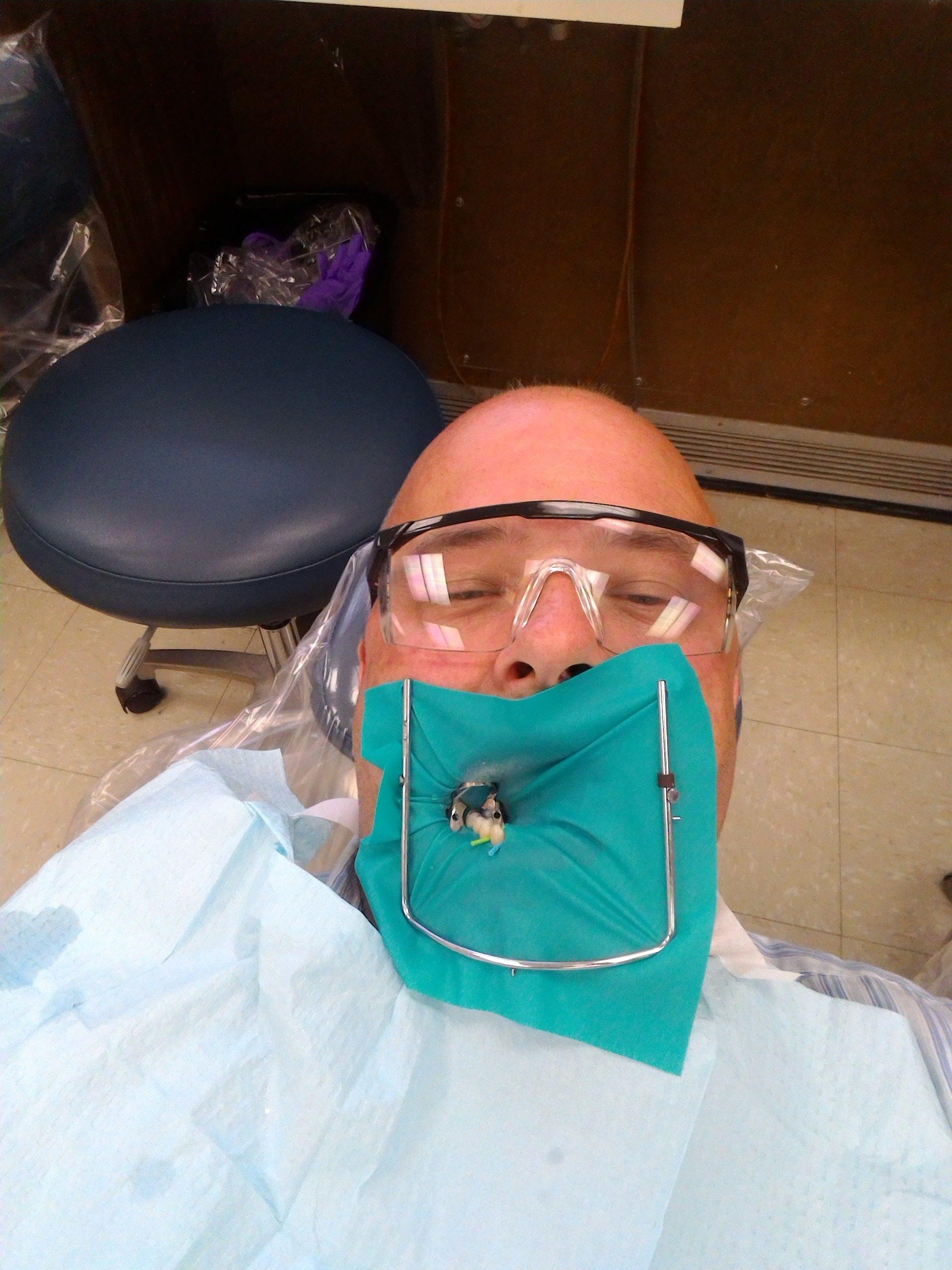 In this phot a metal frame is supporting a dental dam which is leaving a few teeth exposed tobe worked on. I'm waeering safety glasses and have a paper bib on my chest.